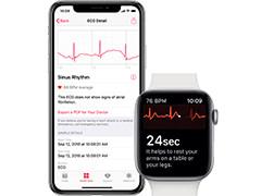 苹果watchOS 5.1.2将启用心电图功能