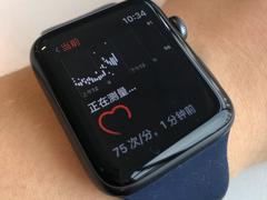 最新研究:Apple Watch检测心率不齐准确度仅为34%