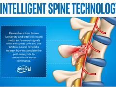 AI向善 英特尔人工智能助瘫痪患者恢复运动功能